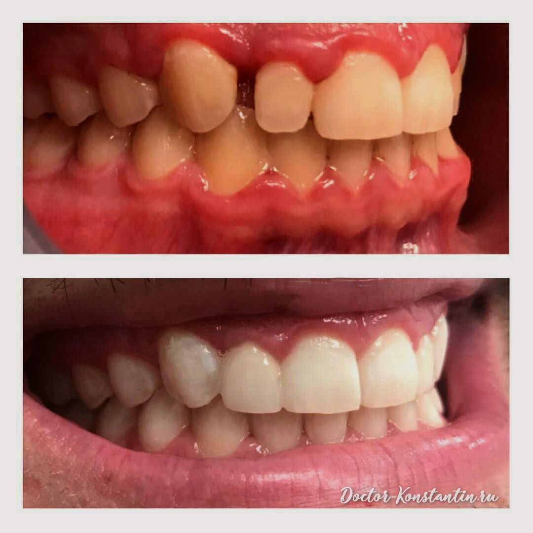 Убрали щель между зубами безметалловой коронкой