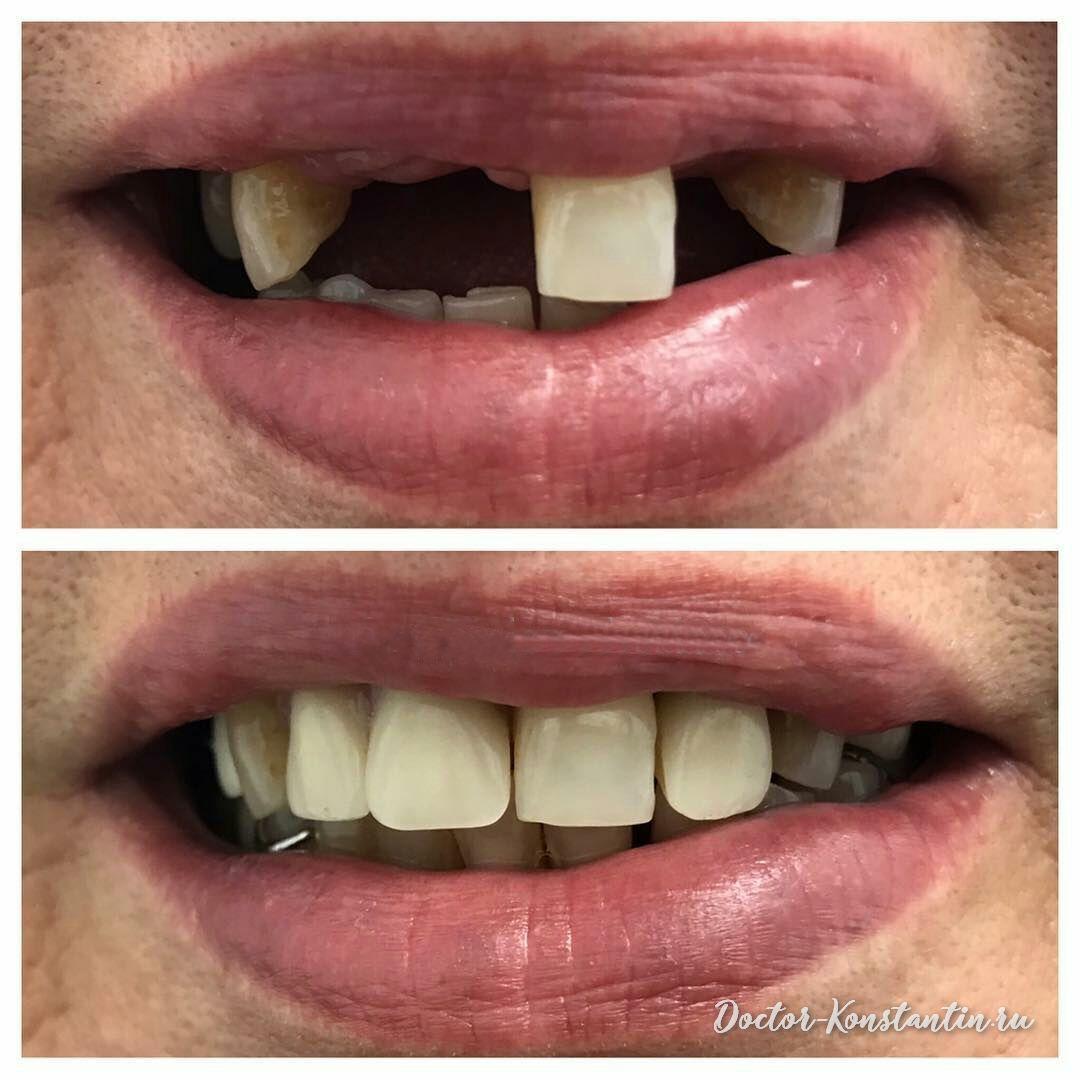 Восстановление зубного ряда мостовидным протезом