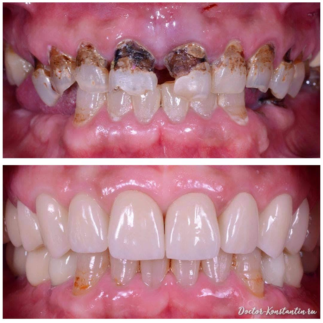 Реставрация зубов при кариесе