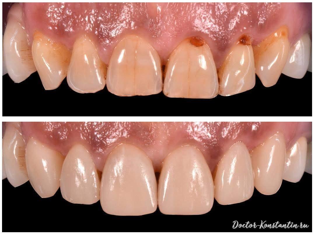 Реставрация зубов при клиновидных дефектах