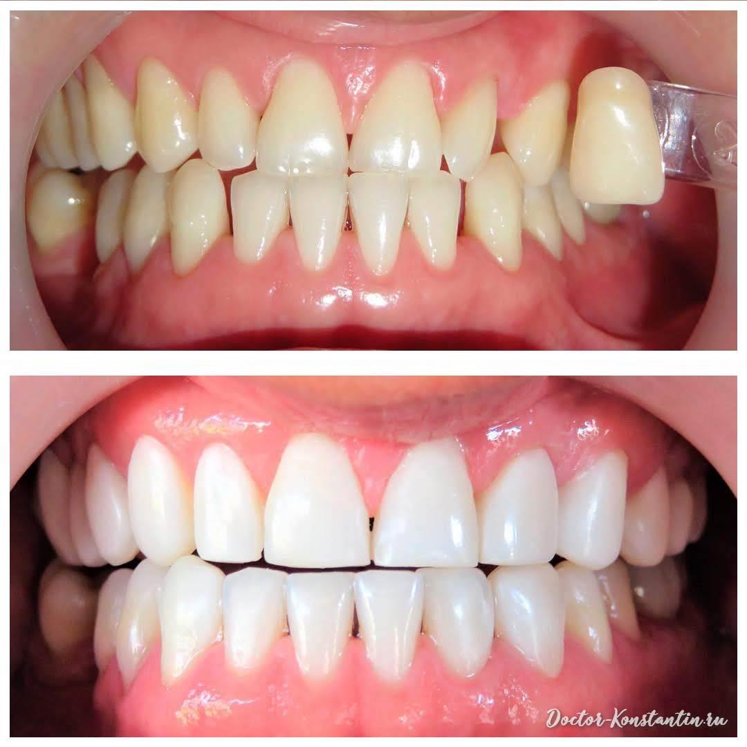 Передние зубы под виниры