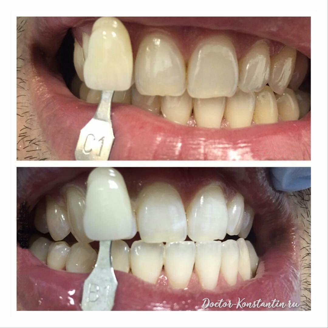 Отбелили передние зубы