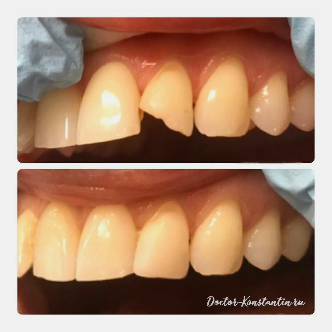 Восстановление зуба после травмы резца